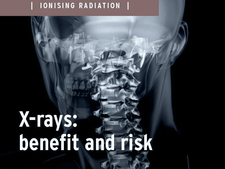 X-ray: Benefit and risk