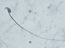 Sperm of a mouse